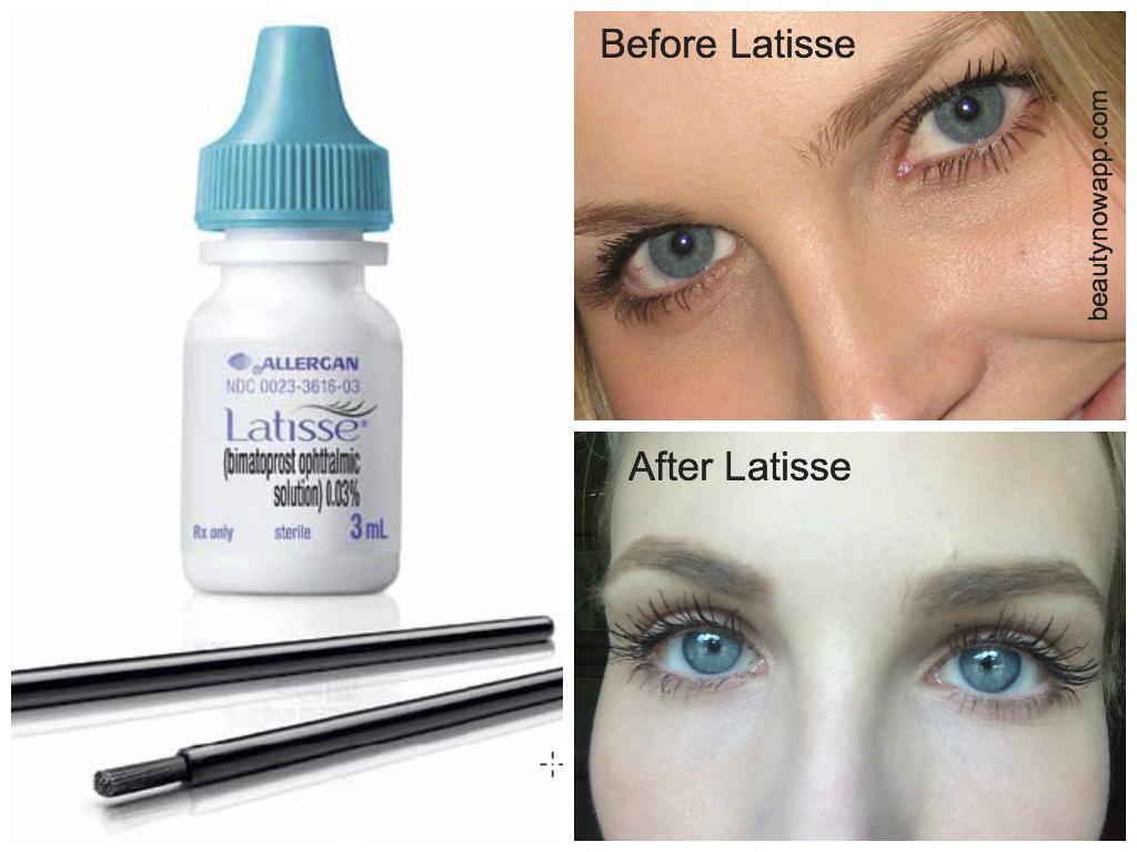 Latisse Reviews-- BeautyNow Blog