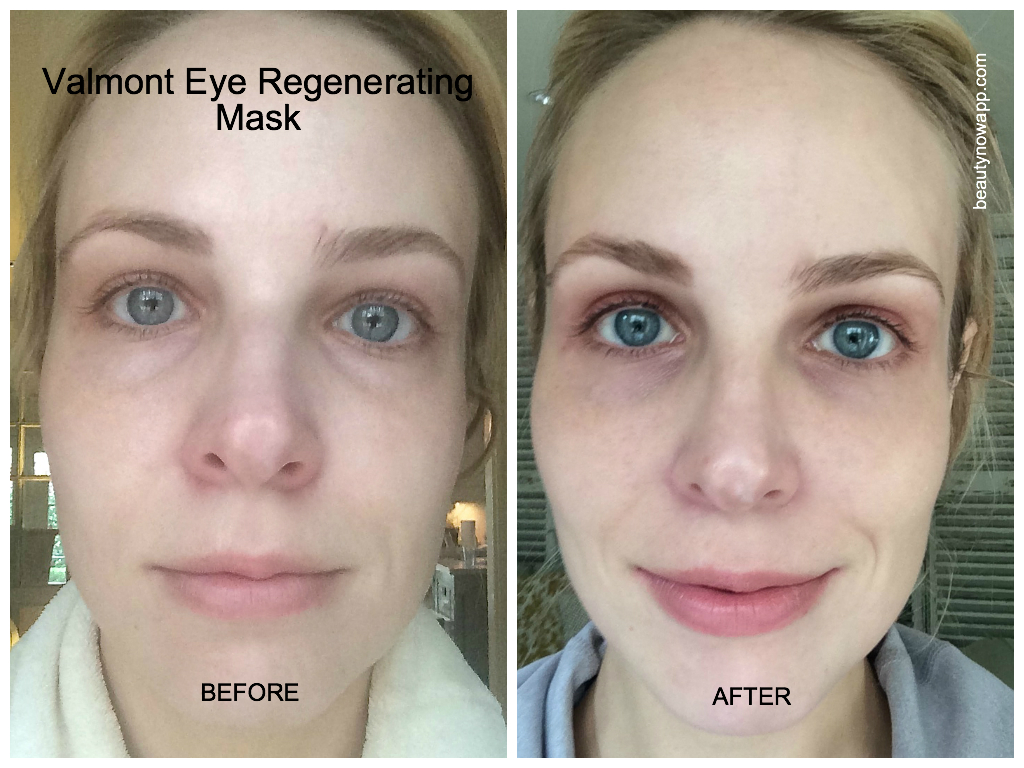Best valmont products beautynow blog witness the remarkable decrease in my upper and lower lid puffiness after 20 minutes of of wearing the valmont eye regenerating mask ccuart Images