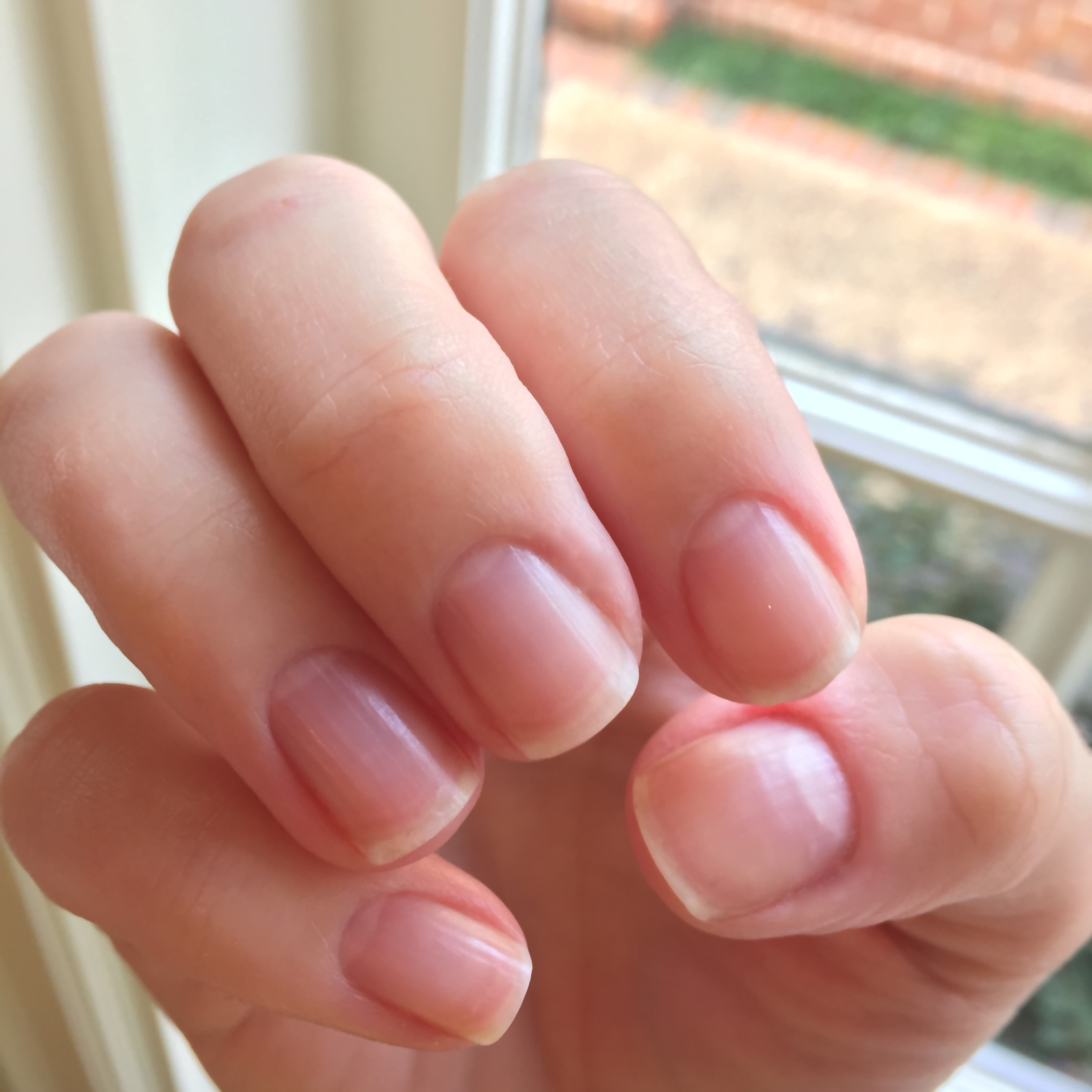 How To Fix Peeling Nails