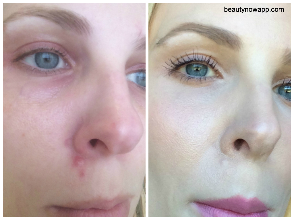 To Cover Up A Flaky Pimple Beautynow